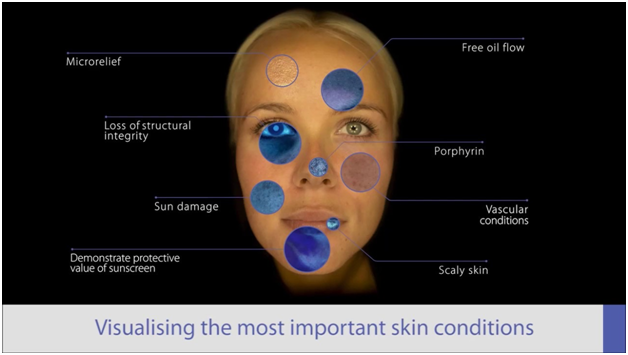 Chart showing skin conditions